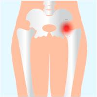 artrosis-de-cadera