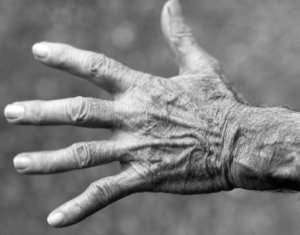 Clínica Tratamiento Artritis Córdoba - Unidad Avanzada del Dolor de Córdoba