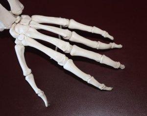Tratamiento Artritis Córdoba - Unidad Avanzada del Dolor de Córdoba