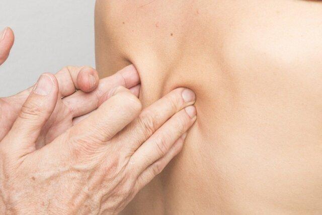 Escoliosis: diagnóstico y prevención